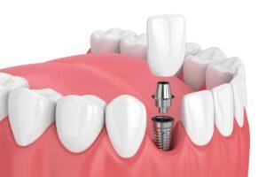 Dental Implants Near Me - Wollongong - Ambience Dental
